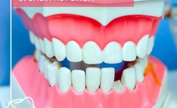 Особенности и виды зубных коронок