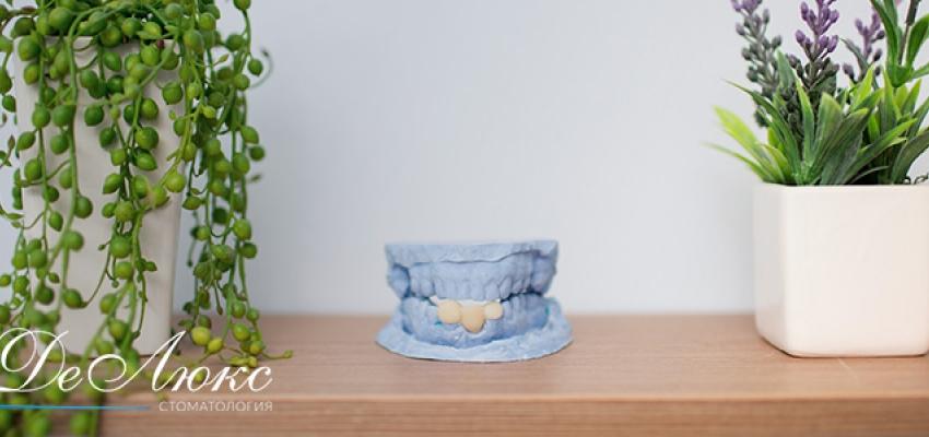Протезирование в стоматологии ДеЛюкс