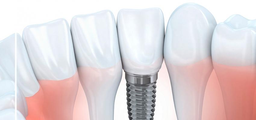 Установка зубного импланта в Хабаровске, этапы и цена
